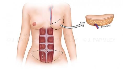 Breast Reconstruction: DIEP Flap Surgery