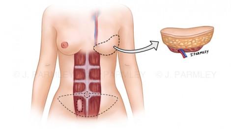 Breast Reconstruction: TRAM Free Flap Surgery