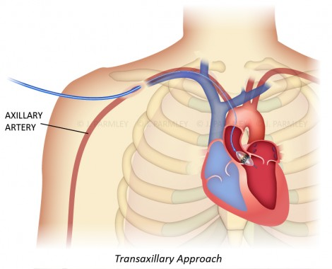 Parmley_TAVRTransaxillary